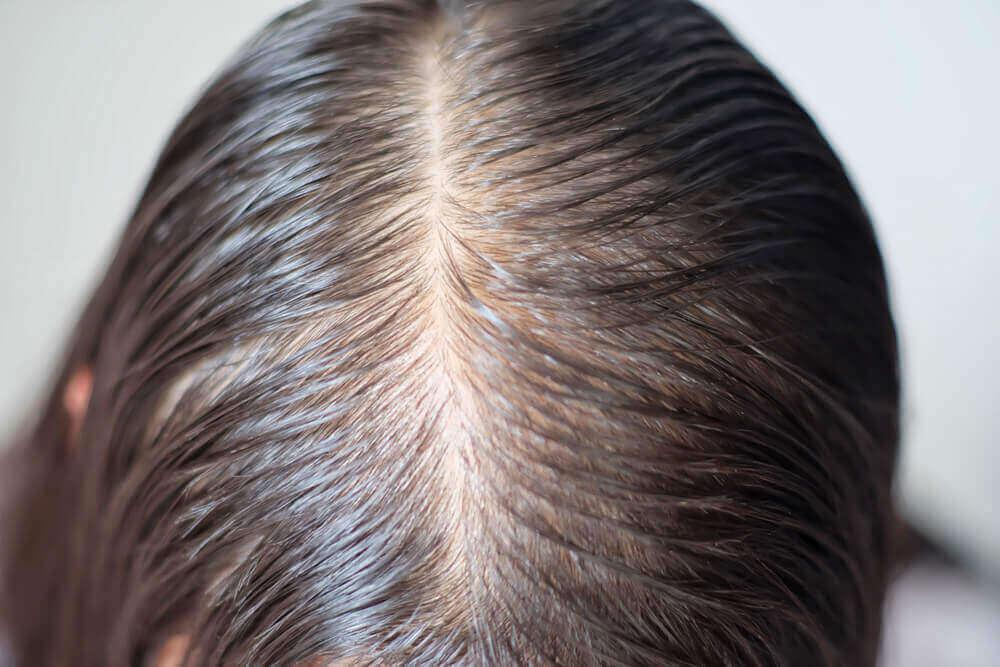 An oily scalp