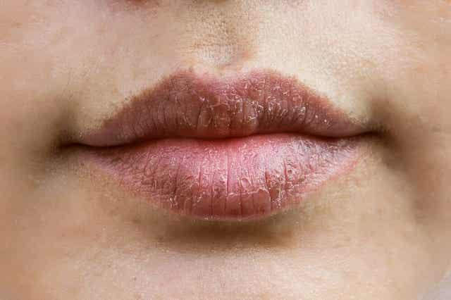 Tørre og sprukne læber