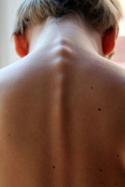 Transverse Myelitis: Symptoms, Causes, and Treatments