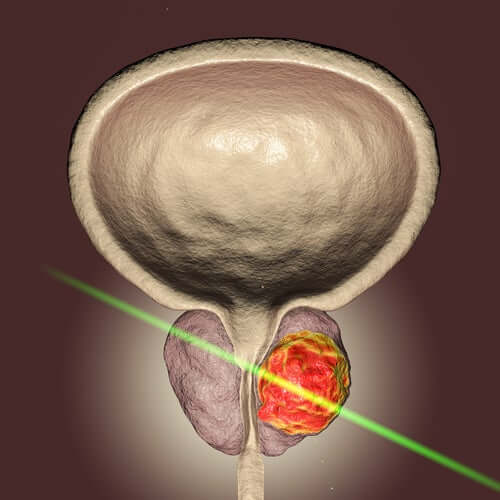 The Prostate Laser: a Breakthrough in Science for Prostate Surgery