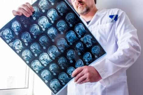 doctor looking at computed tomography tests