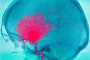 What's an Intracerebral Hemorrhage and Why Might it Occur?