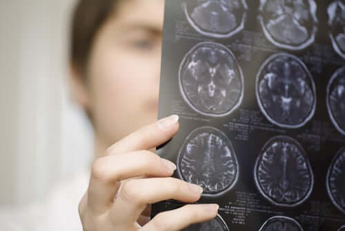 A doctor looking at an MRI of the brain.
