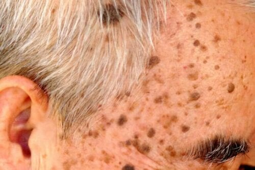 Treatment for Seborrheic Keratosis