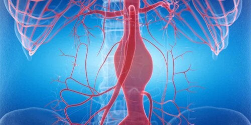 Arterielle Hypertonie - Blutgefäße