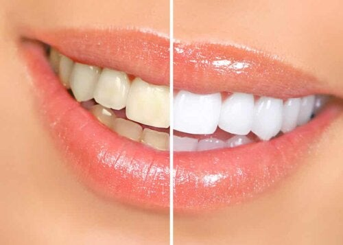 A comparison of whitened teeth.