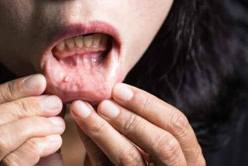 A person with oral cancer.