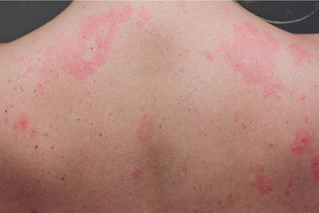 A woman with a rash all over her back.