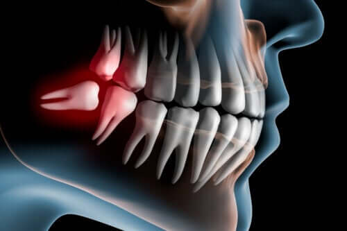 Symptoms of Impacted Wisdom Teeth and Treatment