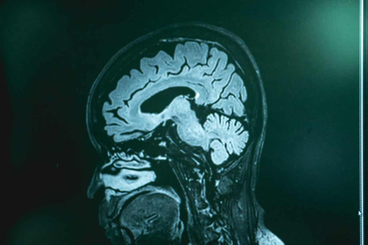 CAT scan of a brain