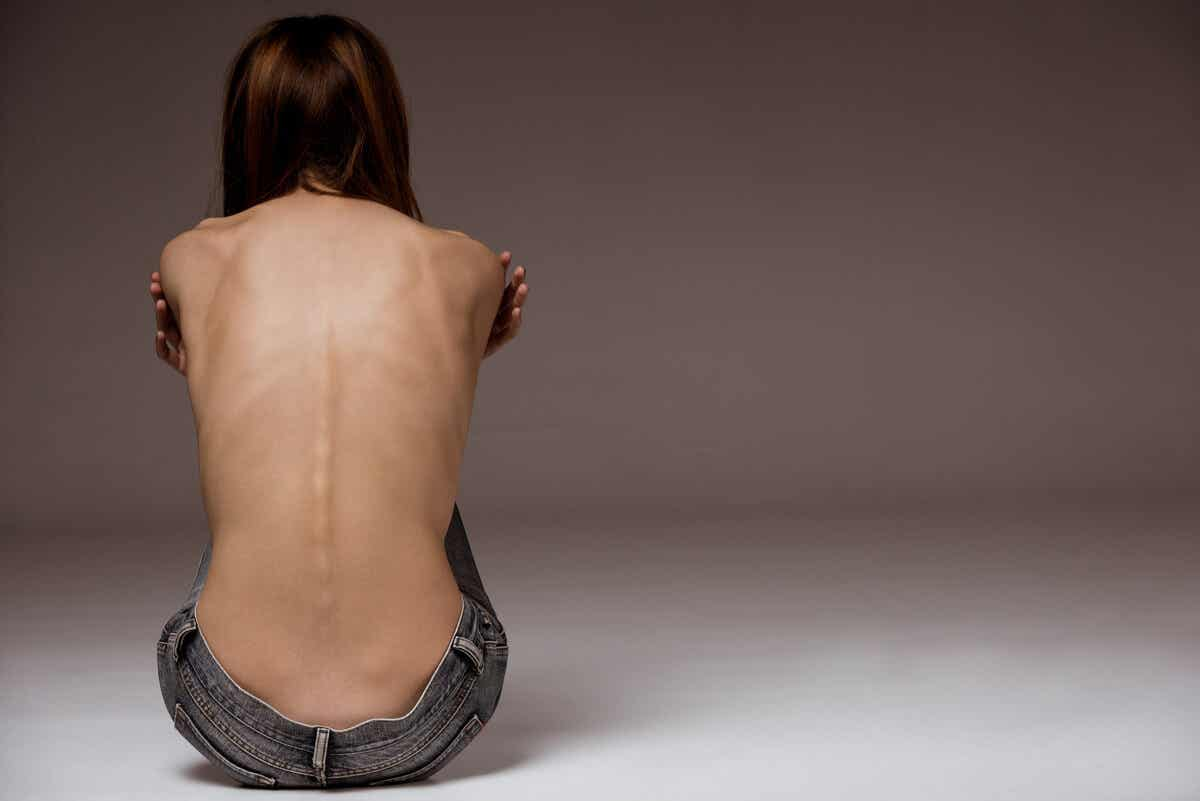 A gender perspective in healthcare: a woman's thin, bony back.