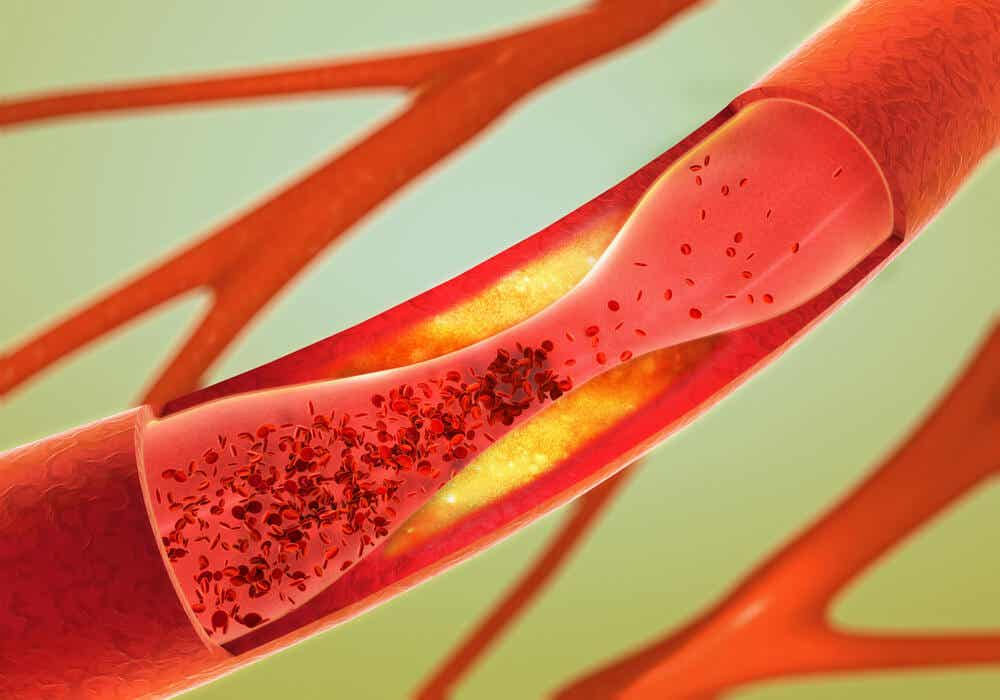 Cholesterol accumulating in an artery.