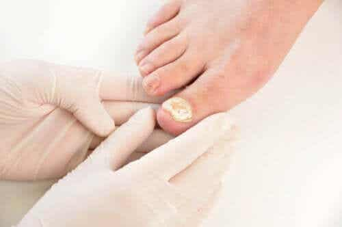 7 Ways to Prevent Fungal Nail Infections