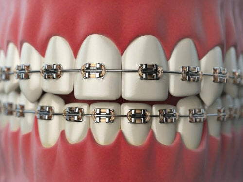8 Care Tips for People with Orthodontics