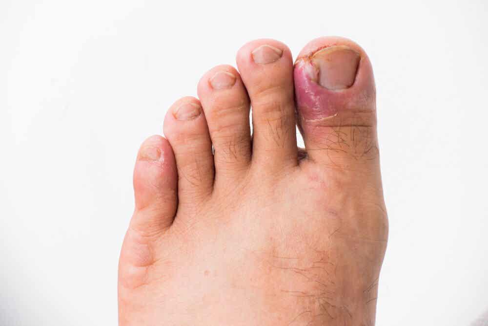 An infected toenail.