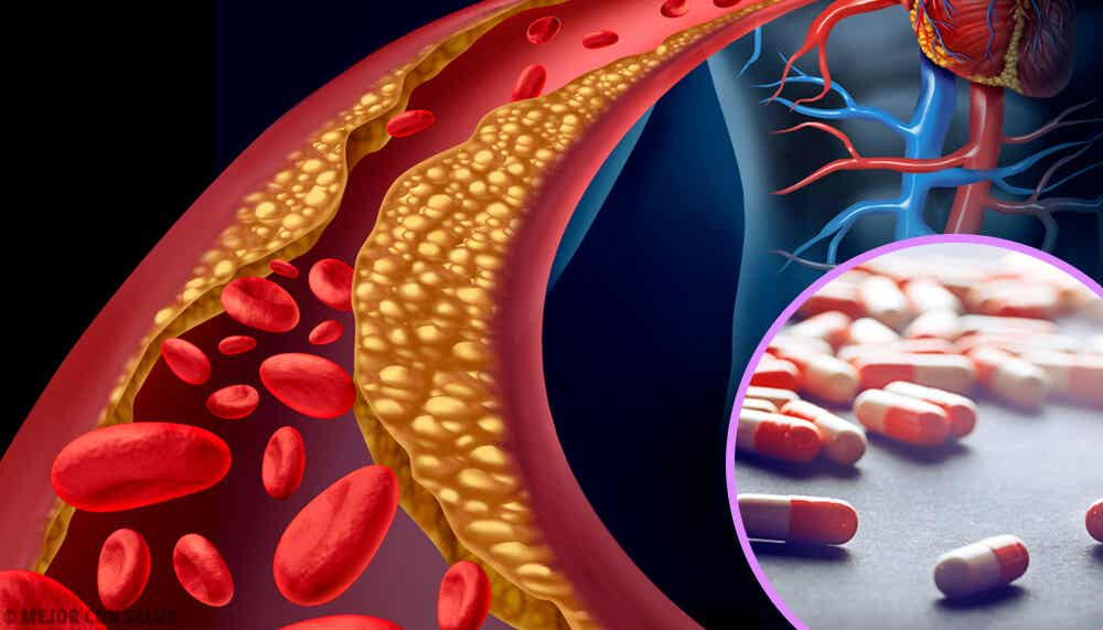 Dietary supplements for hyperlipidemia.