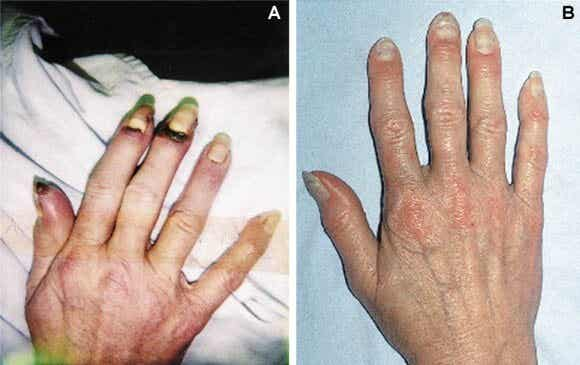 Causes, Symptoms, and Treatment of Buerger's Disease