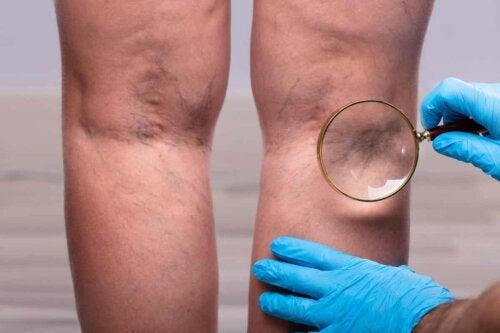 En læge ser på en persons ben