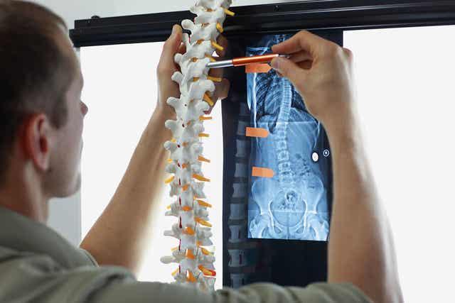 Læge ser på røntgen af rygrad