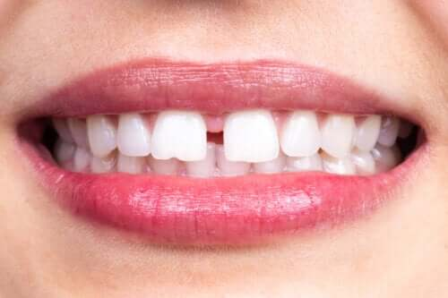 Characteristics and Causes of Dental Diastema