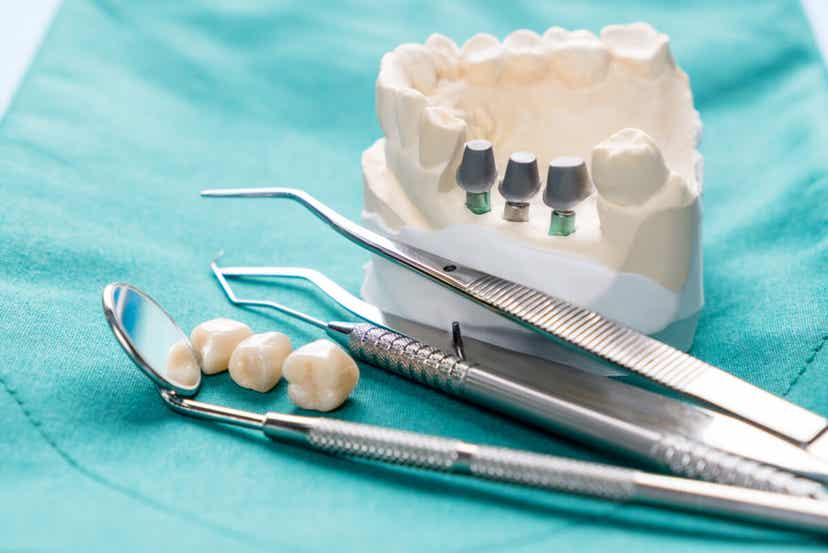 Μοντέλο γύψου των ούλων και των δοντιών.