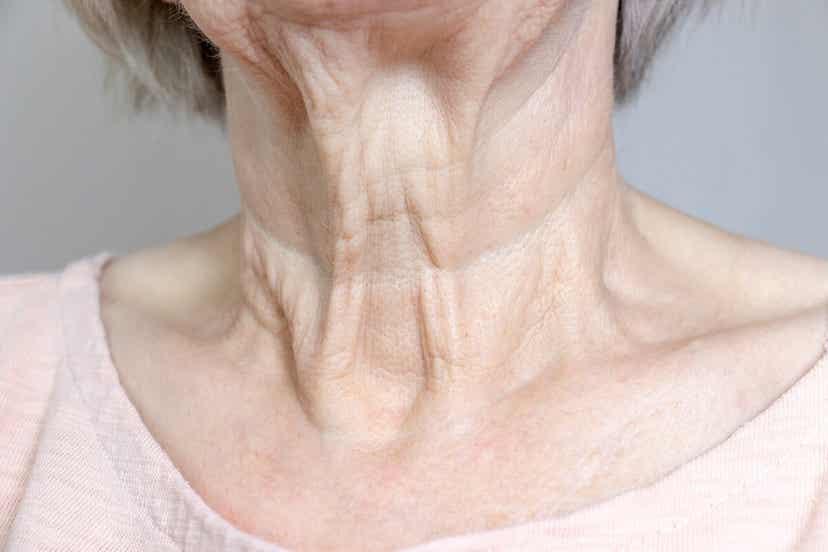 En ældre kvinde med slap hud på på hagen og halsen
