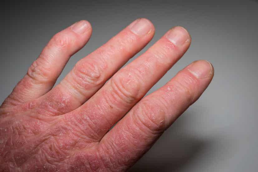 Welt-Lupus-Tag - Eine Person mit extrem trockener und roter Haut an der Hand.