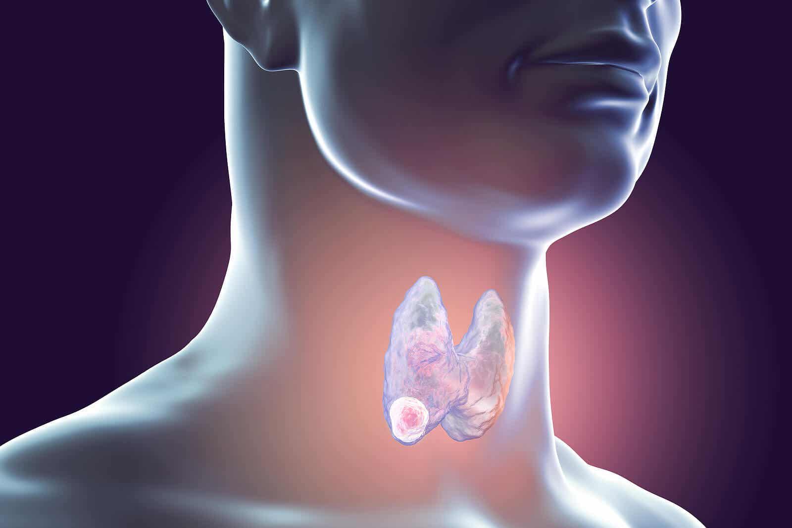 A digital illustration of a thyroid nodule.