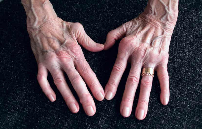 The hands of an elderly woman with arthritis.