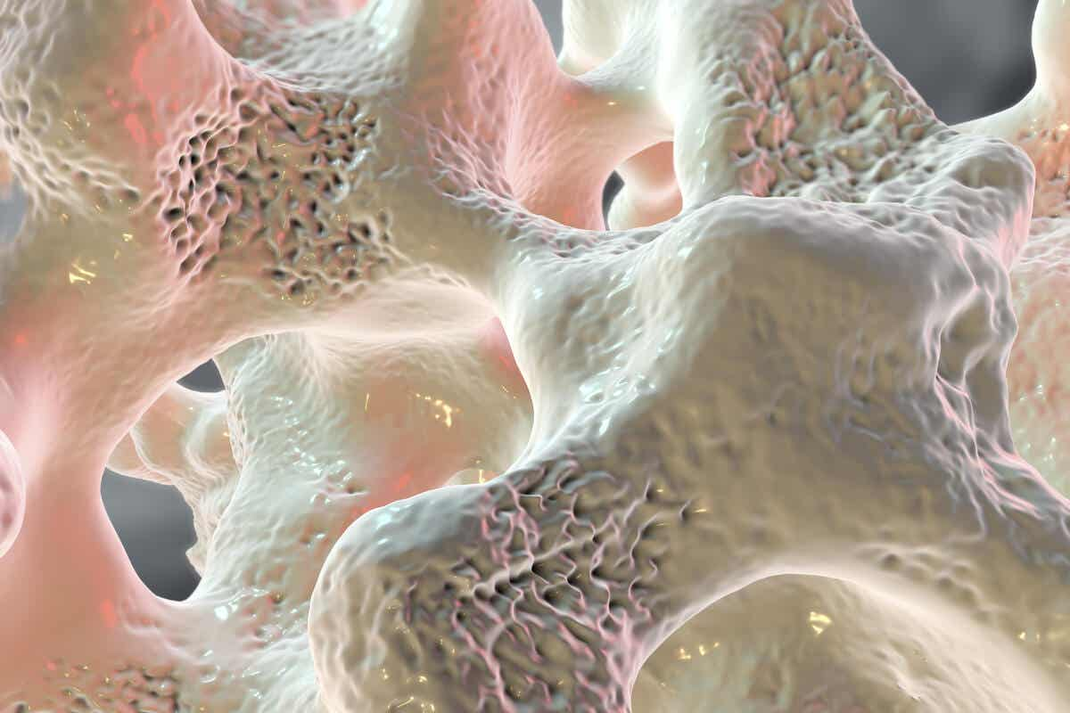Osteoporosis in a bone.