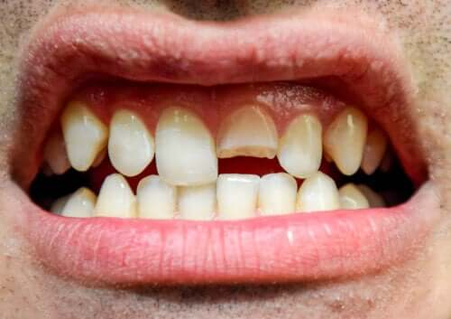 Dental Trauma: What Is It and What Types Are There?