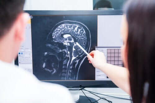 Early Signs of Multiple Sclerosis