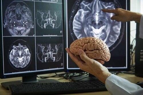 En lege som peker på en skjerm på en hjerne.