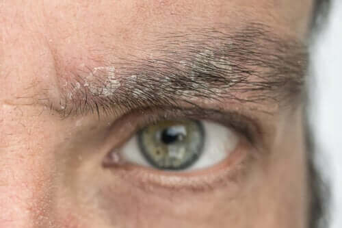 Dandruff in the Eyebrows: Why Does It Occur and How to Eliminate It