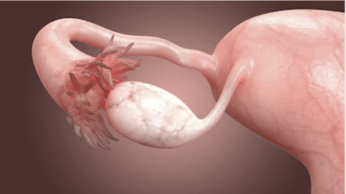 The Causes of Blocked Fallopian Tubes