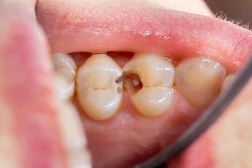 close up of cavities in patient's teeth