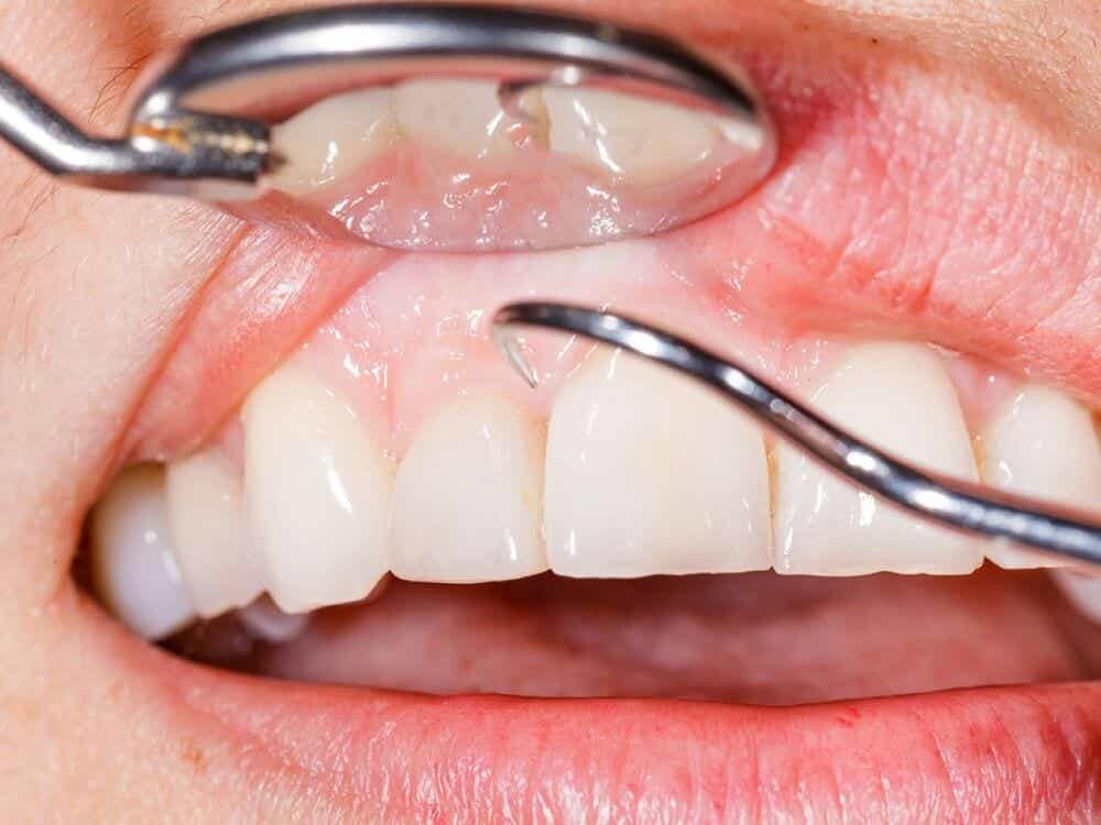 A dentist scrapes plaque off a tooth.