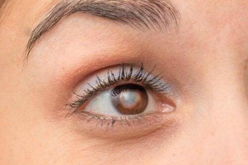 eye with catarac close up