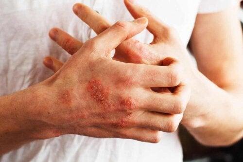 άτομο με ψωρίαση στα χέρια του που ξύνει τον εαυτό του