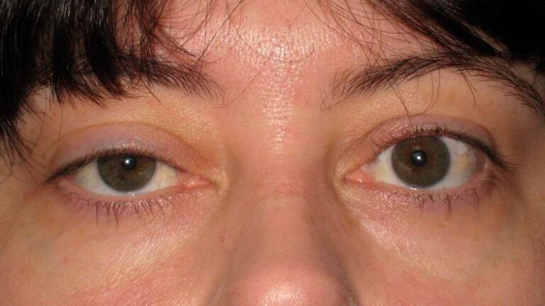 Ptosis or Droopy Eyelid: Causes and Treatments