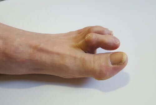 Symptoms, Causes and Treatment of Hammertoes