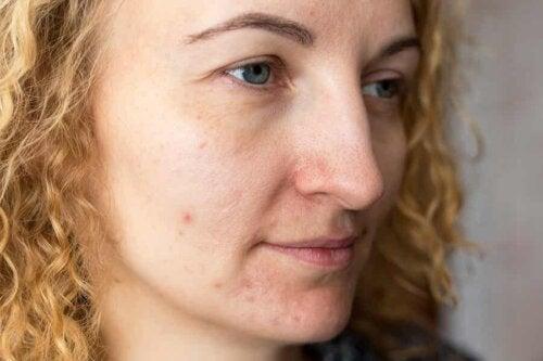 Kvinde med uren hud