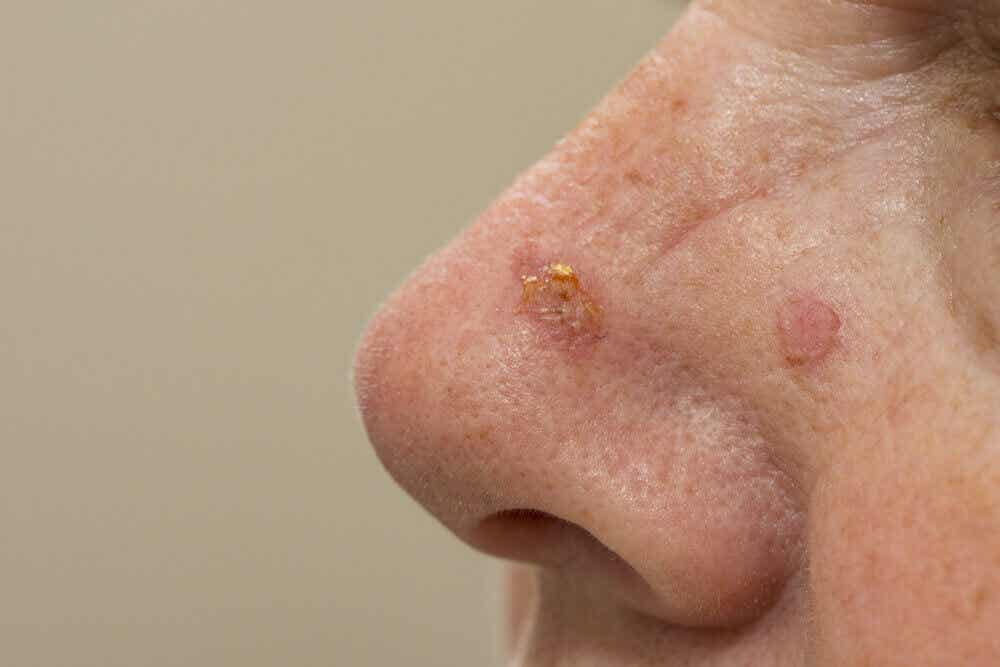 Actinic keratosis on a nose