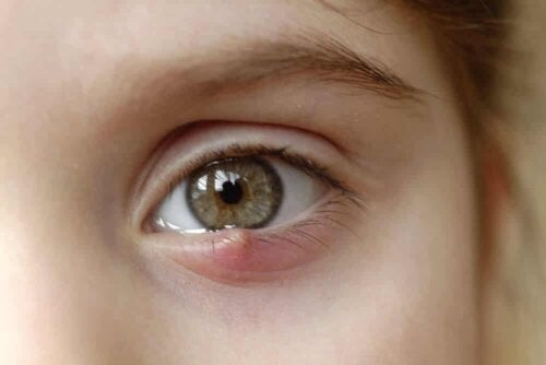 An eye with conjunctivitis.