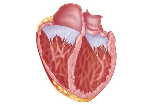 What you Should Know about a Dilated Heart