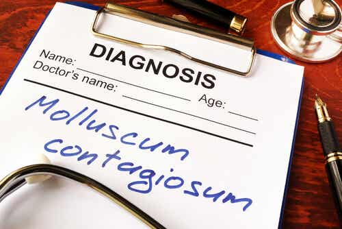 Diagnoza mięczaka zakaźnego.