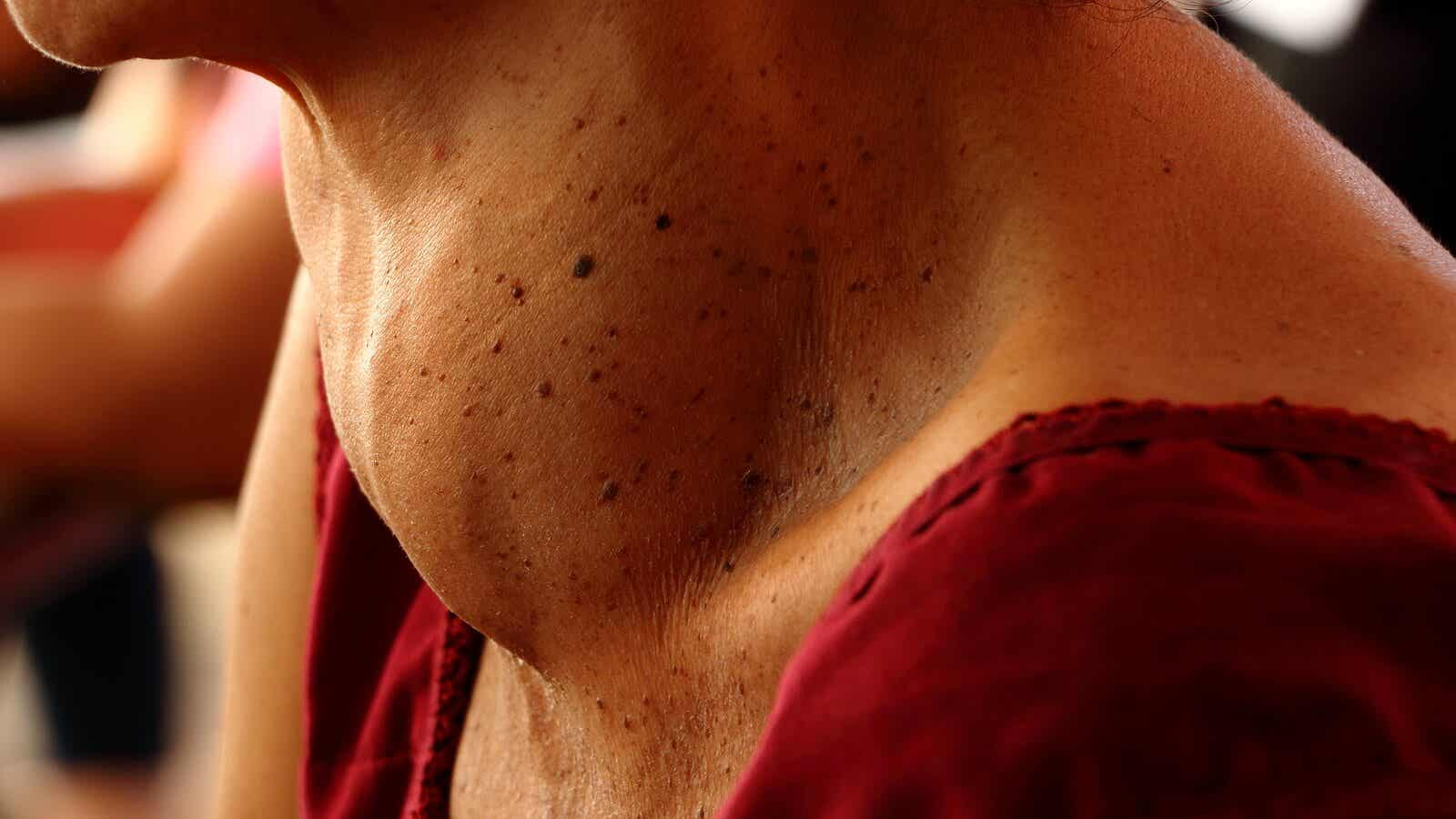 A neck with goiter, a swollen thyroid gland.