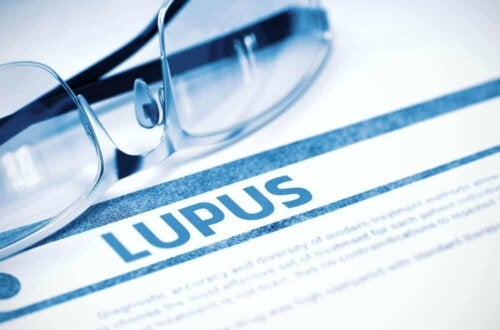 The word lupus on a sheet of paper.