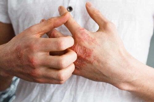 juckende Handflächen - Mann mit geröteten, aufgekratzten Händen