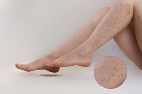 Treatments for Vascular Lesions